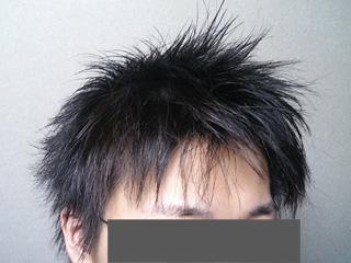 yukinkoの頭06年3月初旬